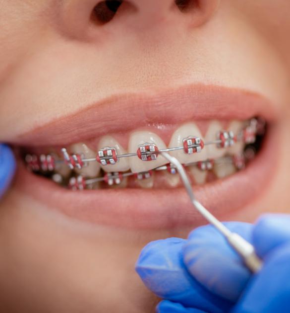 aparelho ortodôntico clínica benatti odontologia