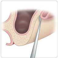 cirurgia odontológica clínica benatti odontologia