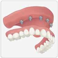 implante ponde maxila clínica benatti odontologia