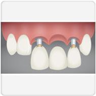 implante ponte clínica benatti odontologia