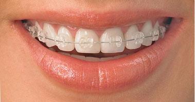 aparelho de porcelana clínica benatti odontologia