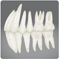prótese fixa clínica benatti odontologia