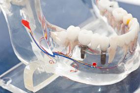 prótese sob implante clínica benatti odontologia