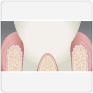 tratamento de periodontite clínica benatti odontologia
