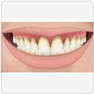 causa da gengivite benatti odontologia
