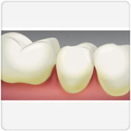 causas da gengivite Benatti Odontologia