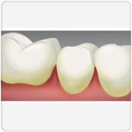 doenças da gengiva e diabetes benatti odontologia