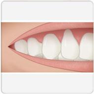 enxerto de gengiva Benatti Odontologia