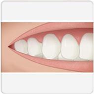 enxerto de gengivas Benatti Odontologia