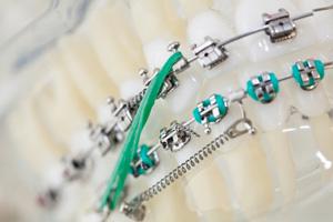 ortodontia para adultos Benatti Odontologia
