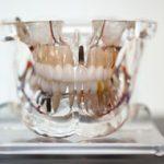 tipos de prótese dentária benatti odontologia