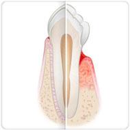 tratamento de periodontite Benatti Odontologia