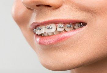 Dente Encavalado — Quais os Possíveis Tratamentos?